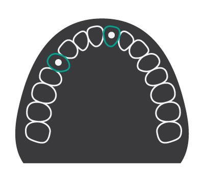 Single Teeth Dental Implants