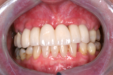 Large Gaps in Front Teeth